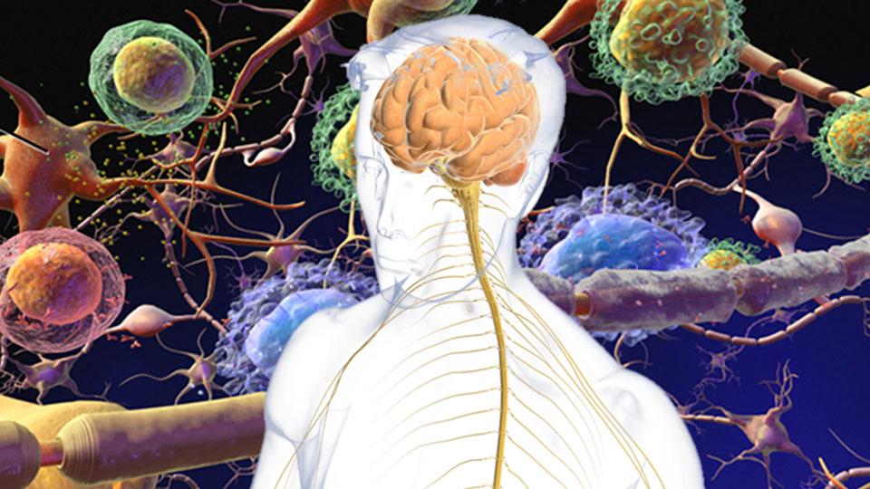 Esclerose Múltipla: doença atinge jovens